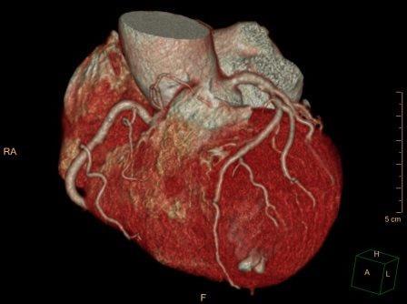CT_heart
